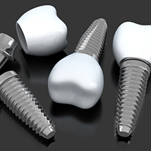 Animated implant supported crowns